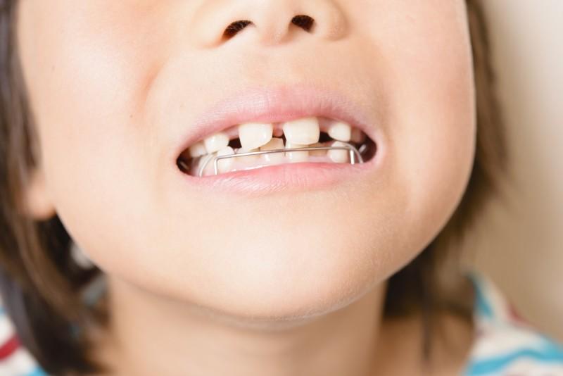 安易に手を出すと危険!? 子供の歯列矯正